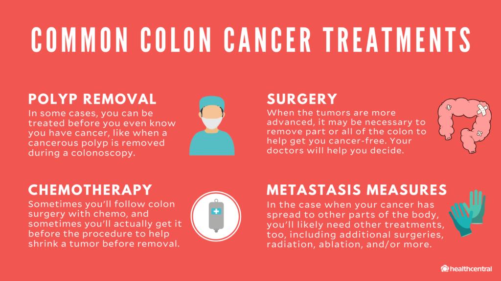 Do You Need A Colonoscopy To Prevent Colon Cancer Ponirevo